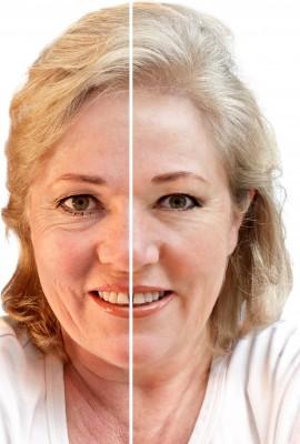 wrinkles on woman