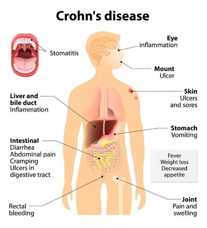 Using Human Growth Hormone for Treatment of Crohn's
